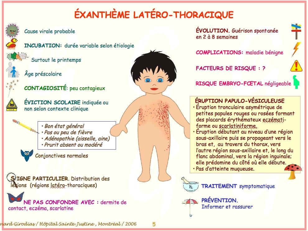Favori Les maladies infantiles ZU25